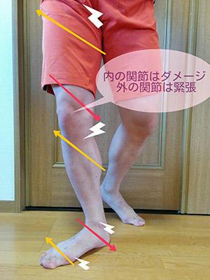 内の関節はダメージ、外の関節は緊張