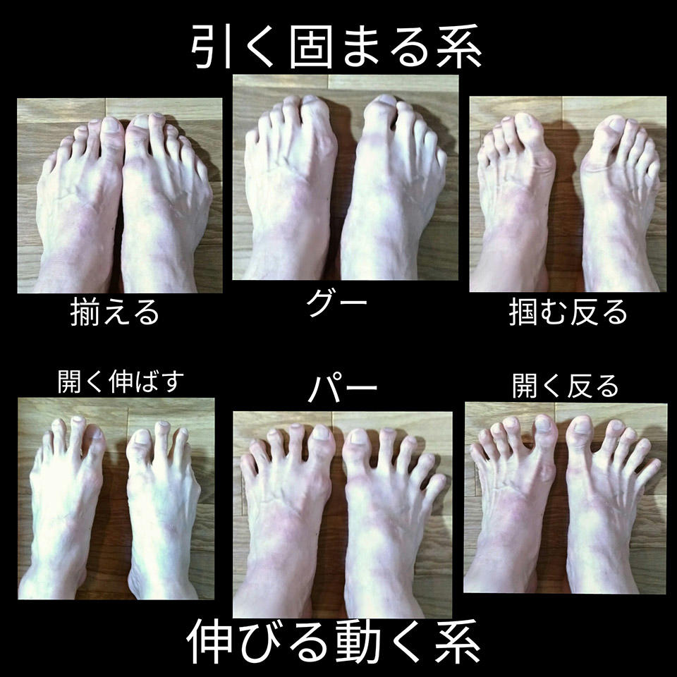 趾にできることの表.jpg